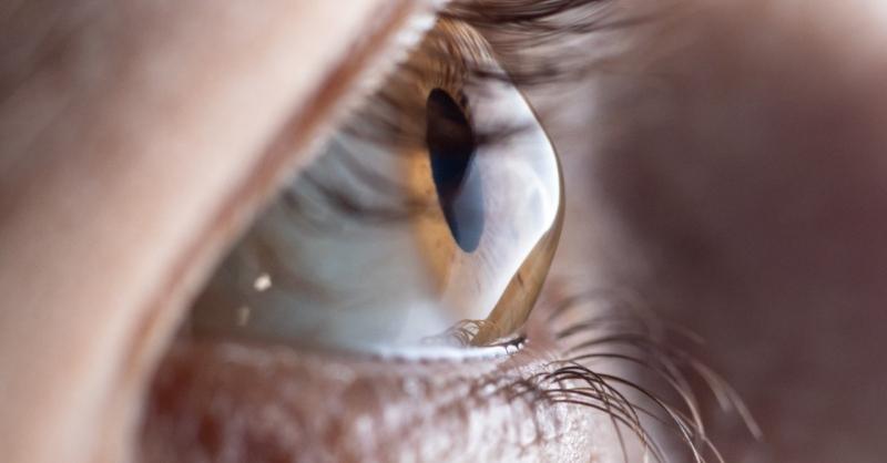 Keratoconusul-afectiune-oculara-progresiva